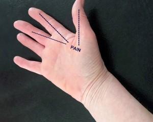 Hand 3-002