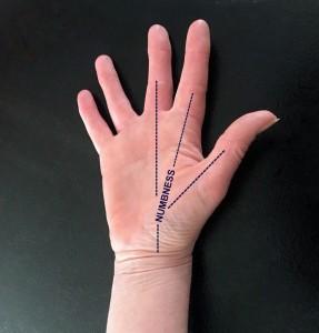 Hand 4-004
